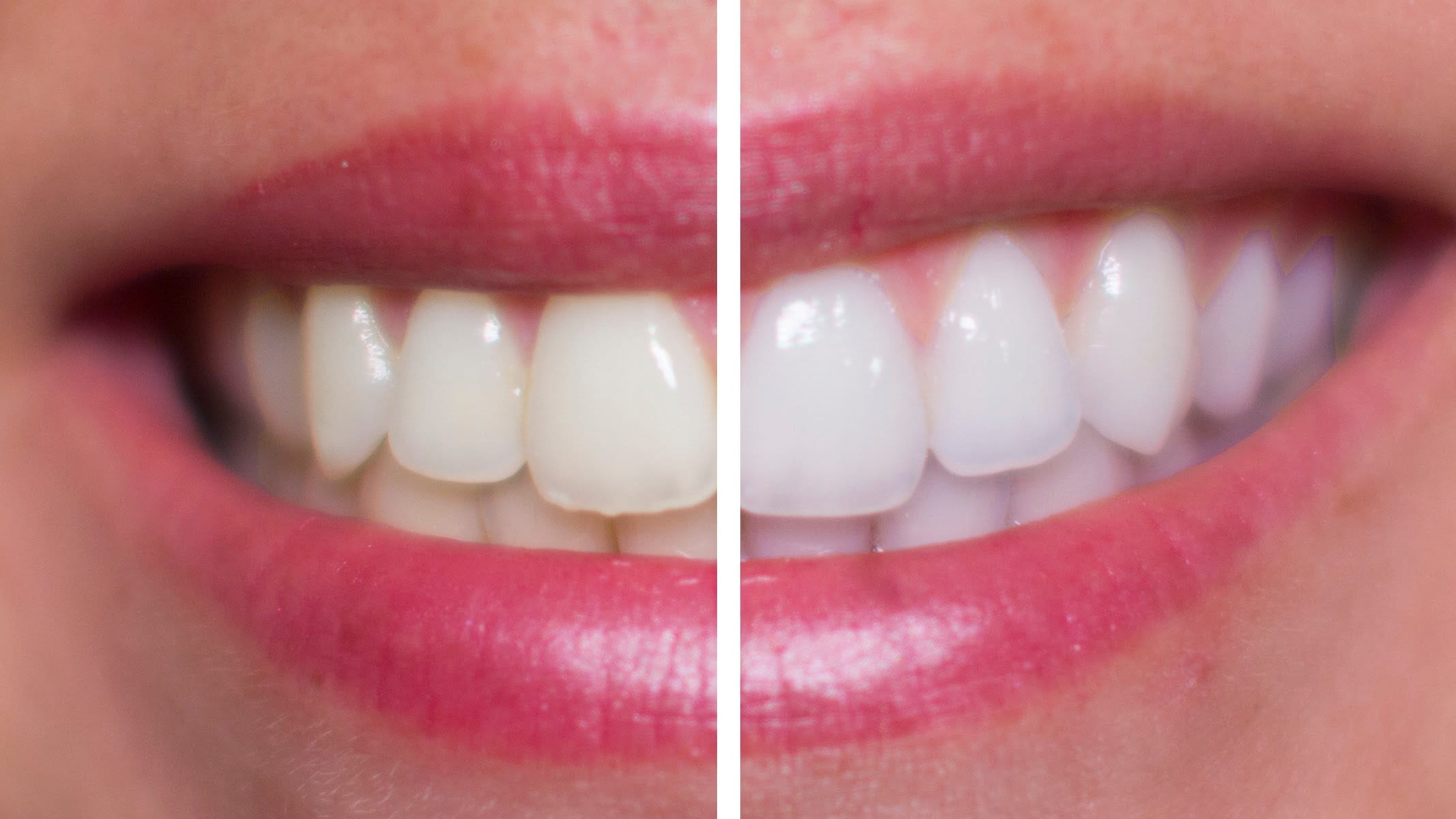 How to Whiten Teeth With Hydrogen Peroxide recommend