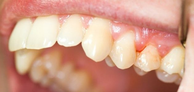 Fight Gum Disease with Antibacterial Mouthwash