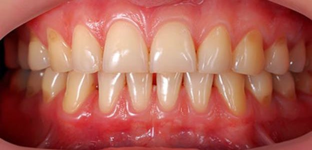 Receding Gums – Prevention, Treatment and Common Causes