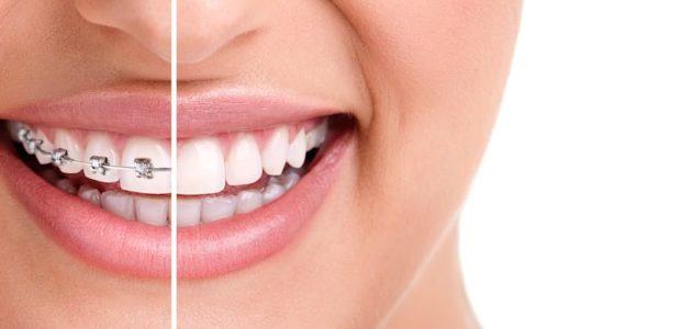 Dental Brace Mythbusting – Don't Believe the Hype!
