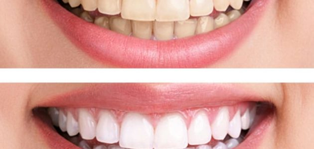 The Biggest Teeth Whitening Myths You're Still Buying Into