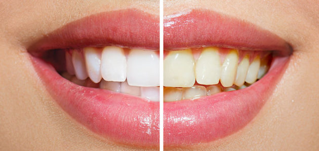 Teeth Whitening Health and Safety – What, Why and How?