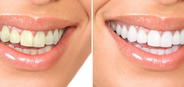 Home Teeth Whitening Kits: A 101 Introduction