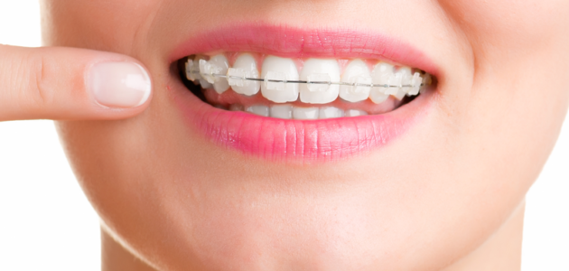 How to Reduce the Pain and Discomfort of Braces