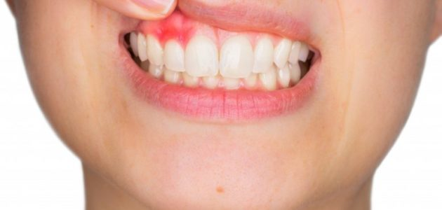 Gum Recession Q&A: Stopping Tooth Loss in Its Tracks