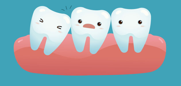 Wisdom Teeth: The Facts You Need to Know (Part 1)