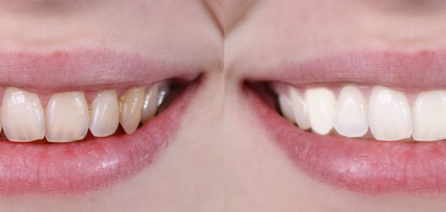 5 Common Mistakes That Can Cause Yellow Teeth