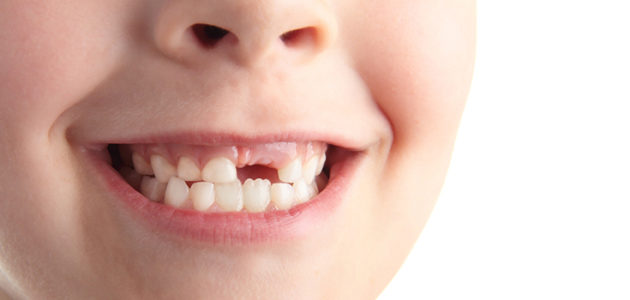 Loose Baby Tooth? Top Tips from the Pros