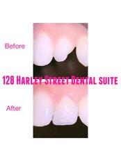 128 Harley Street Dental Suite